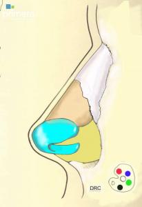 revision rhinoplasty illustration profile view