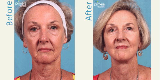 See real patient facelift pictures from Orlando.