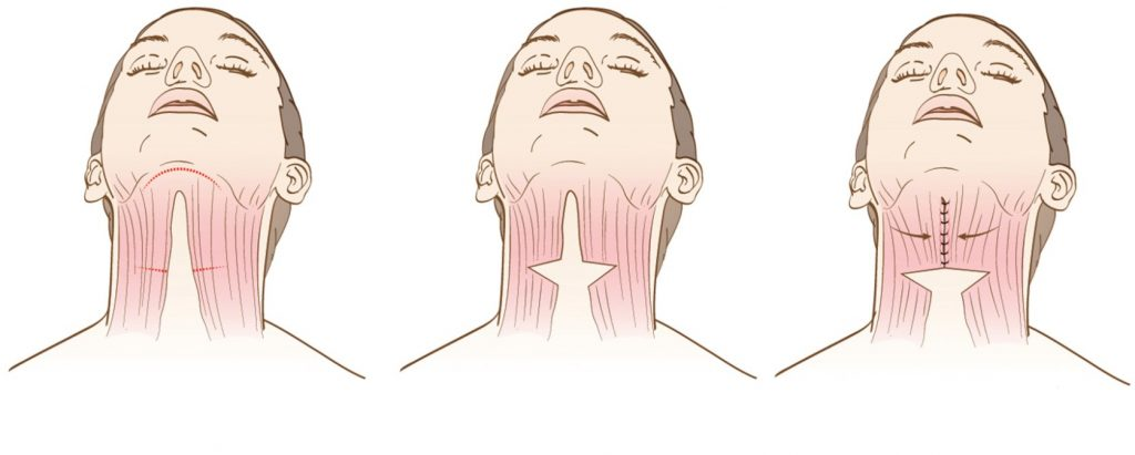 Neck lift procedure diagram
