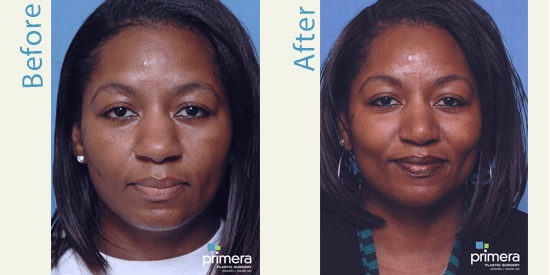 african american rhinoplasty patient before and after front view