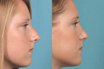 before & after photo Nose job, Rhinoplasty, Orlando, FL, best, #1, expert