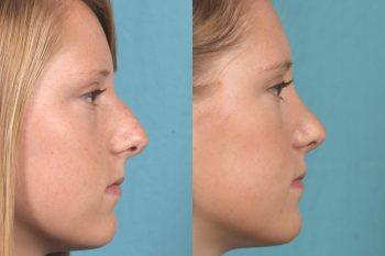 before & after photo Nose job, Rhinoplasty, Orlando, FL, best, #1, expert