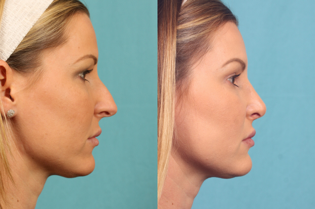 Actual rhinoplasty patient before and after photos profile view