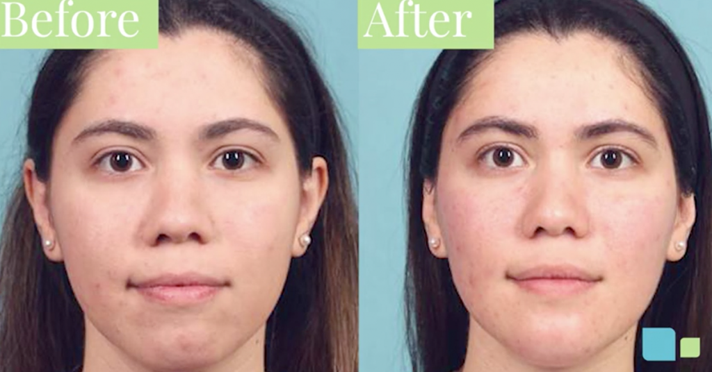 Buccal fat removal before and after photos of actual patient in Orlando