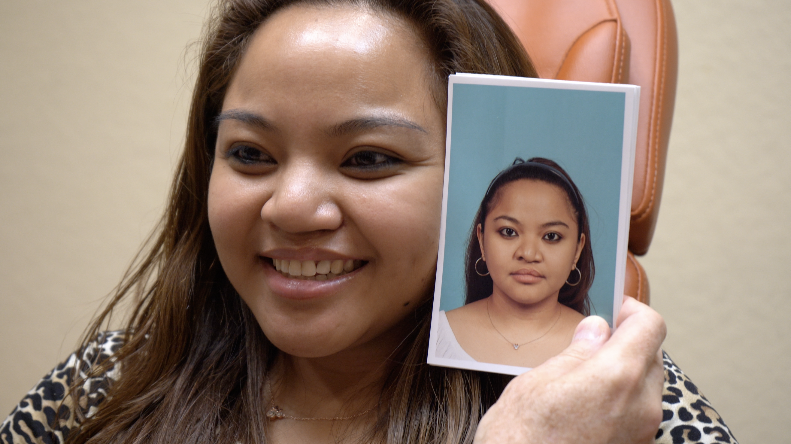 Cleft lip or palate reconstruction patient Kirsten T. shows off results at Primera Plastic Surgery in Lake Mary, Florida