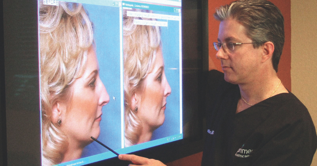 Dr. Gross using Computer Imaging for assessing rhinoplasty in Orlando, FL