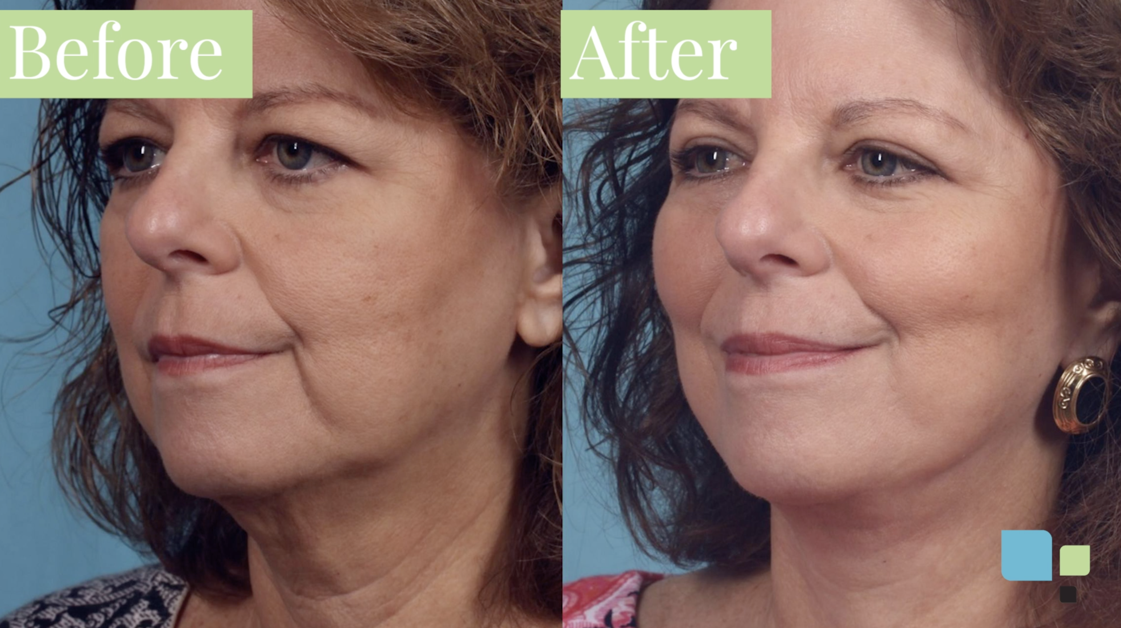 Blepharoplasty before and after photos actual patient