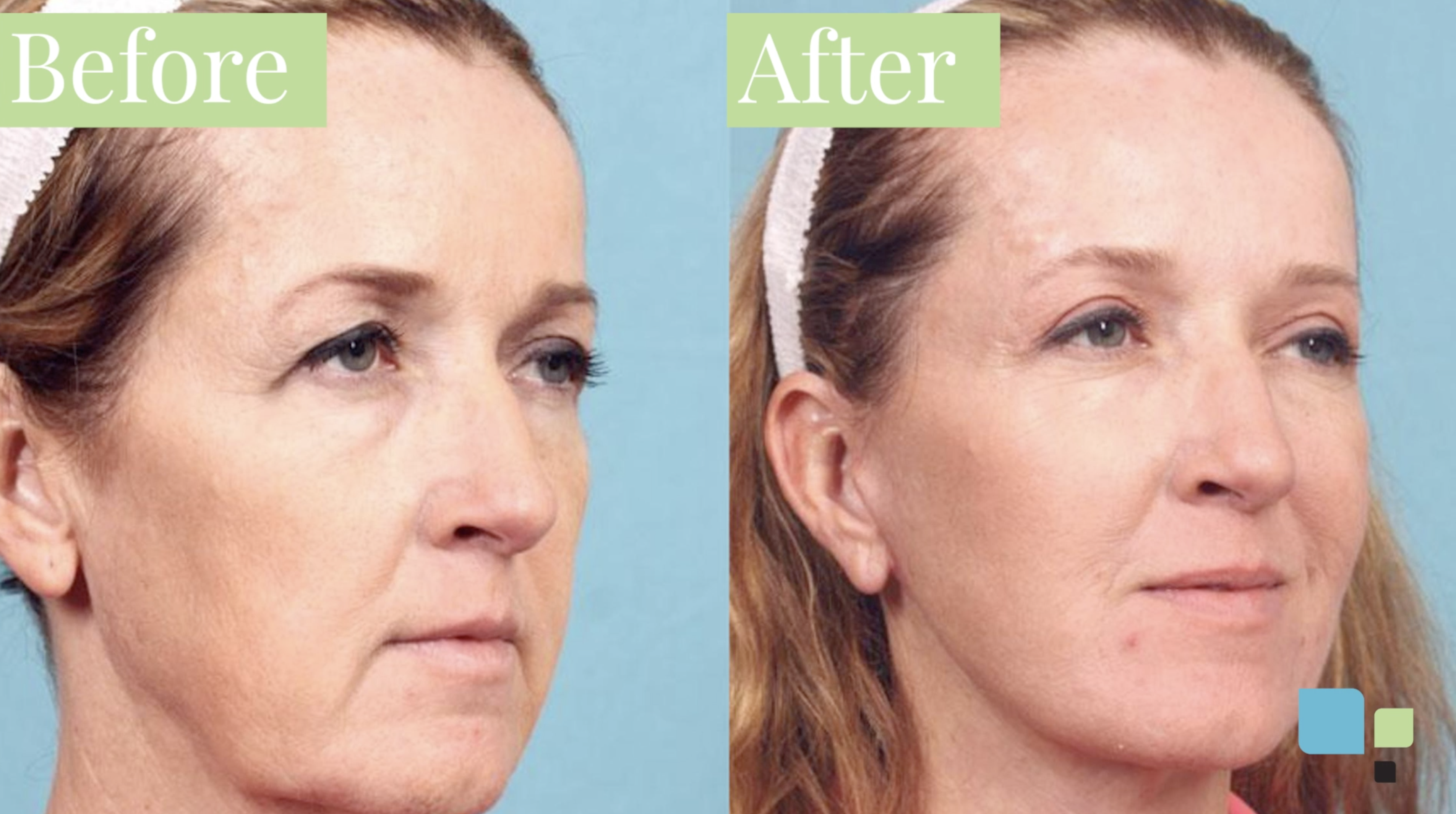 Actual blepharoplasty patient before and after photos